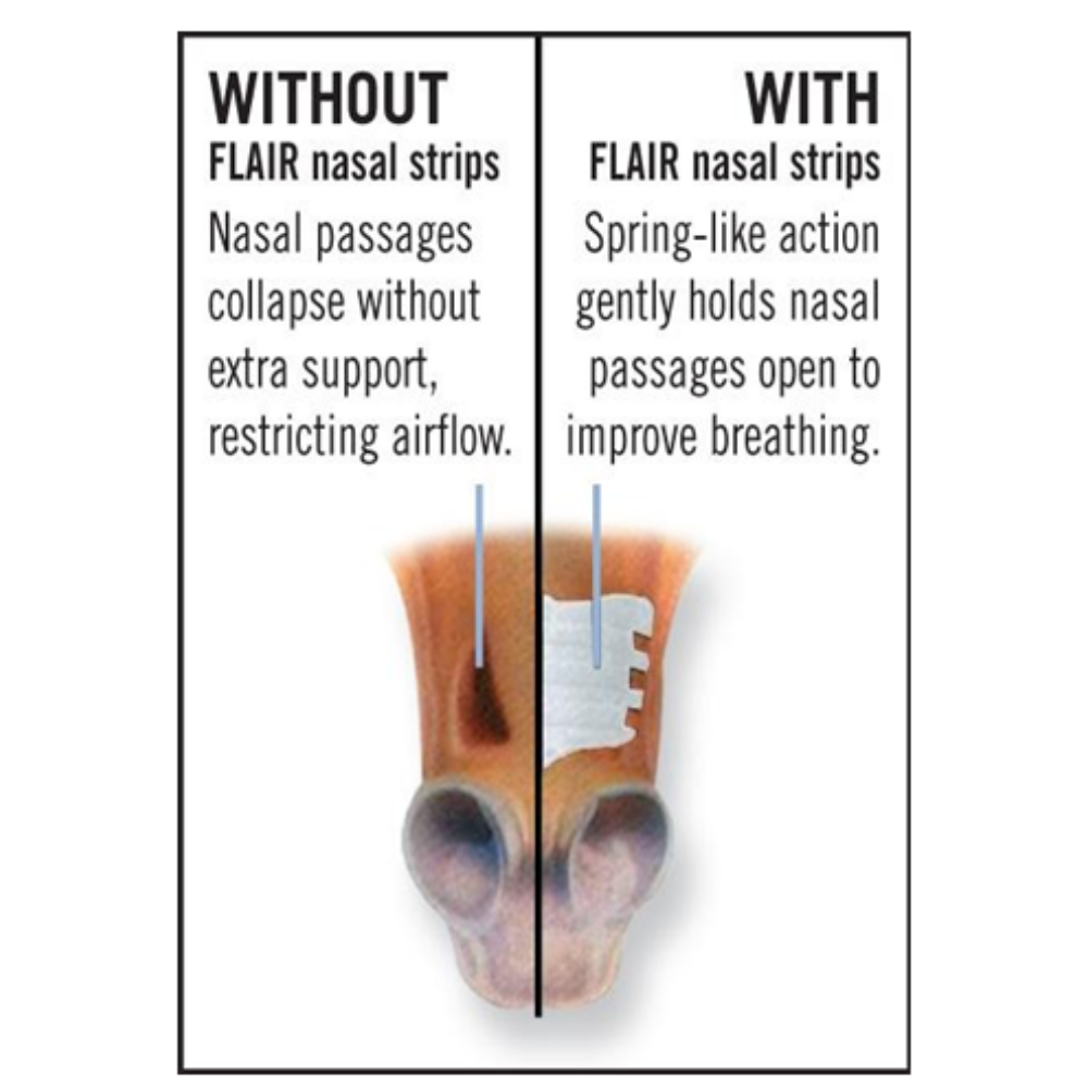 benefits diagram of Flair nasal strips on equine race recovery